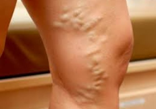 Varicose veins of the saphenous veins of the lower extremities - non-surgical treatment.