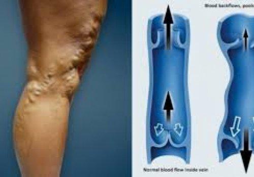 Варикозное расширение  подкожных вен нижних конечностей - безоперационное лечение.